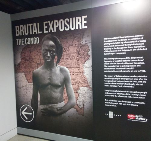 Image of Congolese man with injured wrist at entrance to exhibition