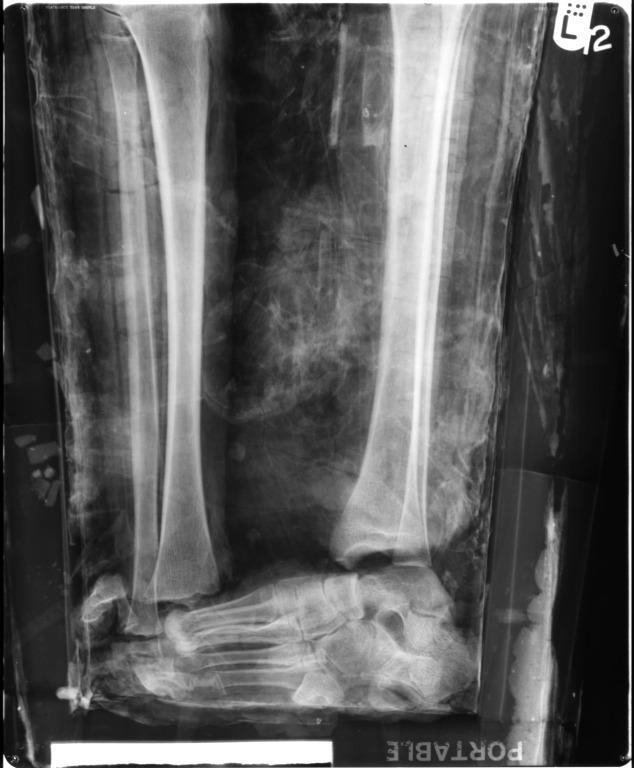 Human Remains; Mummified Body of Nesshutefnut card