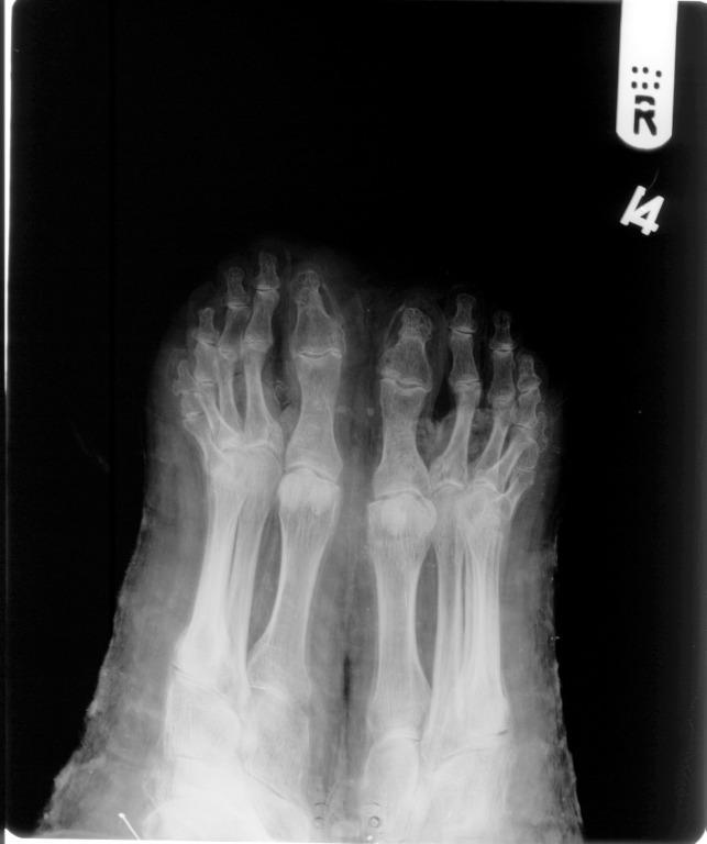 Human Remains; Mummy of Nesmin card